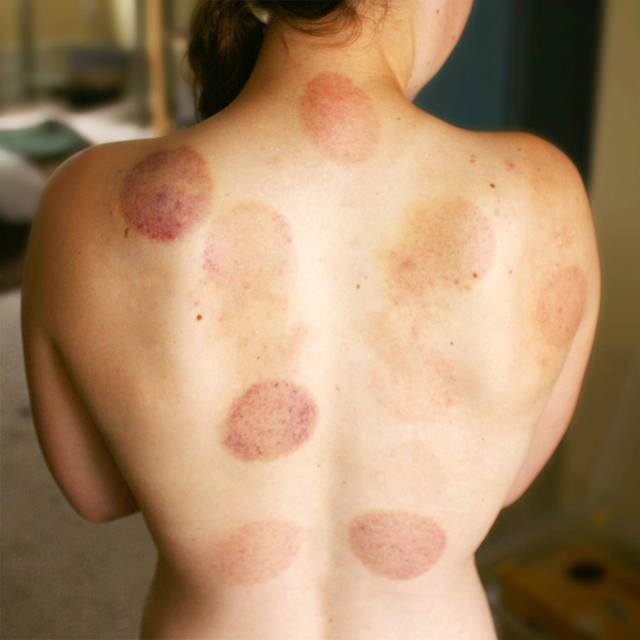 Chinese Fire Cupping
